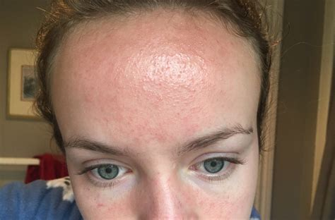 hyperpigmentation or what is it??? - General acne